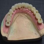 Zirconiu sau metalo-ceramica? Ce sa alegi pentru lucrarile dentare!
