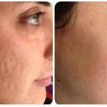 Cum scapi de cicatricele post acnee