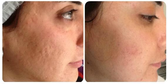 cicatrice acnee
