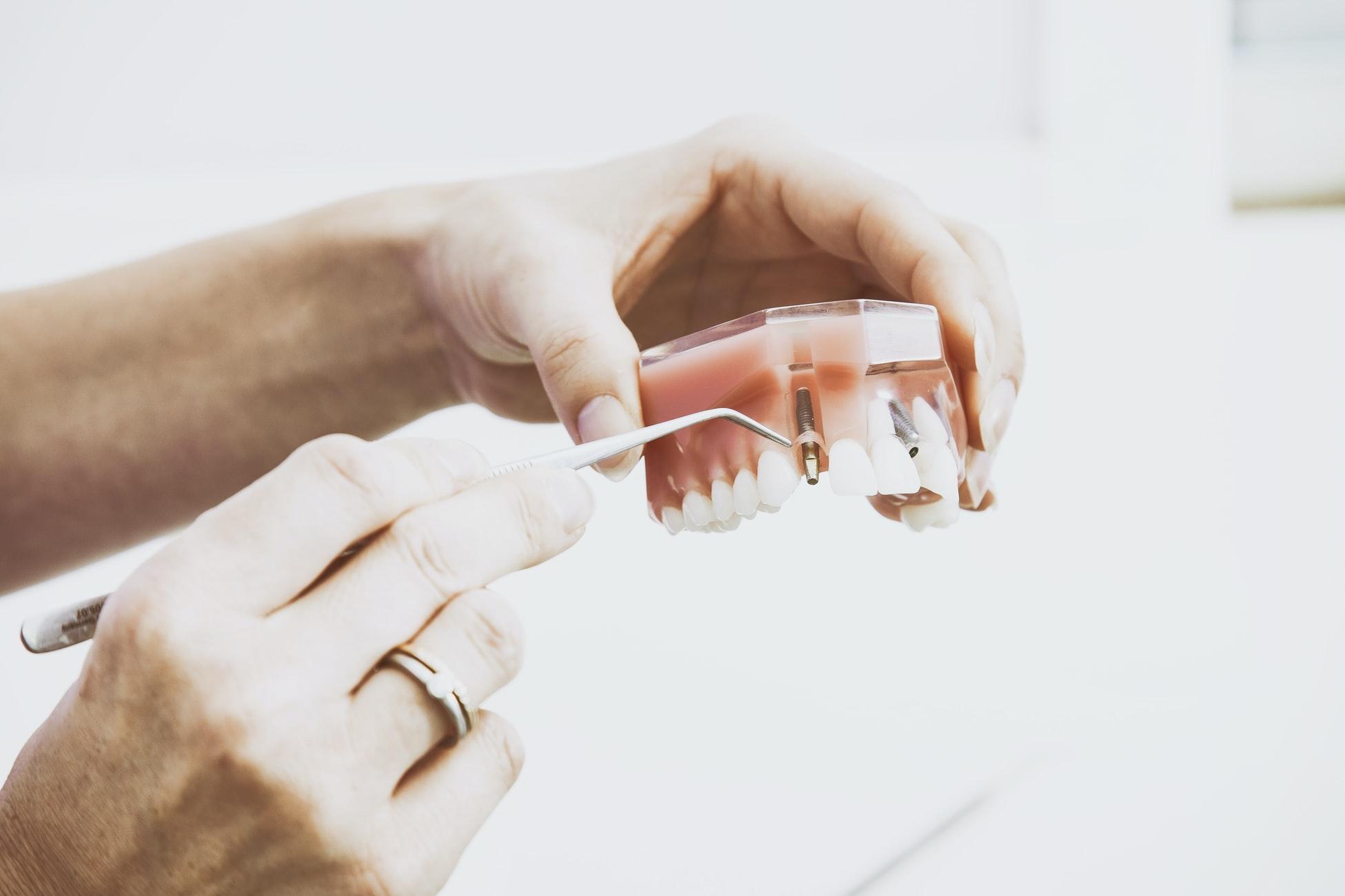 Implanturi dentare imediate