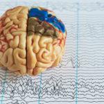Epilepsia poate fi controlată. Interviu cu Dr. Ioana Mîndruță