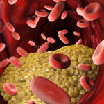 Trigliceride mărite. Ce înseamnă și cum să rezolvi problema